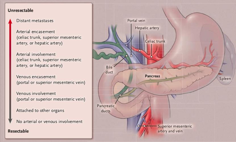 Living Longer: Locally Advanced Pancreatic Cancer(I)
