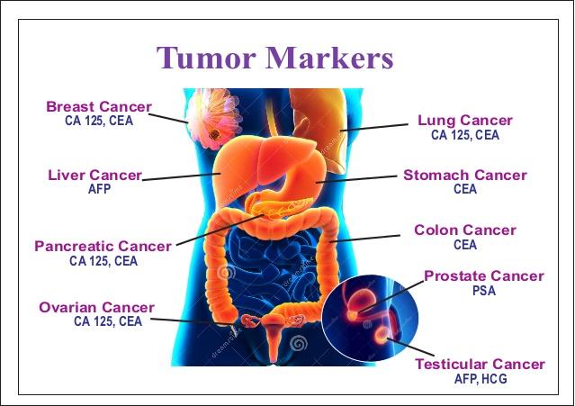 tumor-markers-1-638.jpg