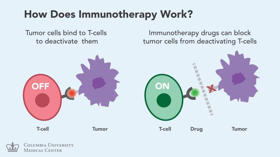 Advanced/ Stage 4 Lung Cancer: Immunotherapy in 2nd line treatment.