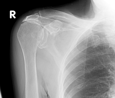 bone mets shoulder.jpg