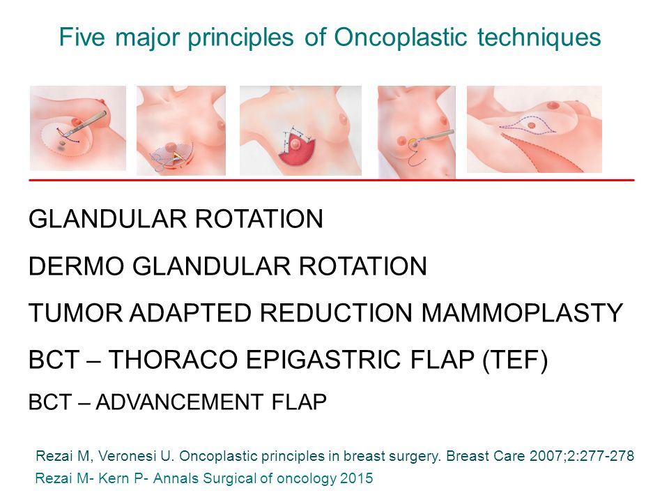 Five+major+principles+of+Oncoplastic+techniques